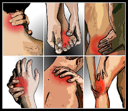 artritis (1)