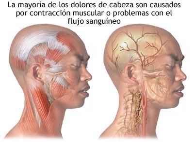 dolor-de-cabeza