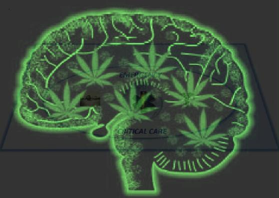 Brain-and-Marijuana